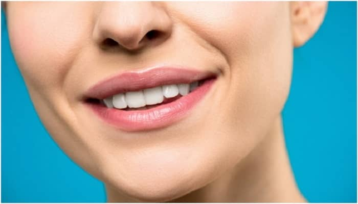Composite bonding versus veneers