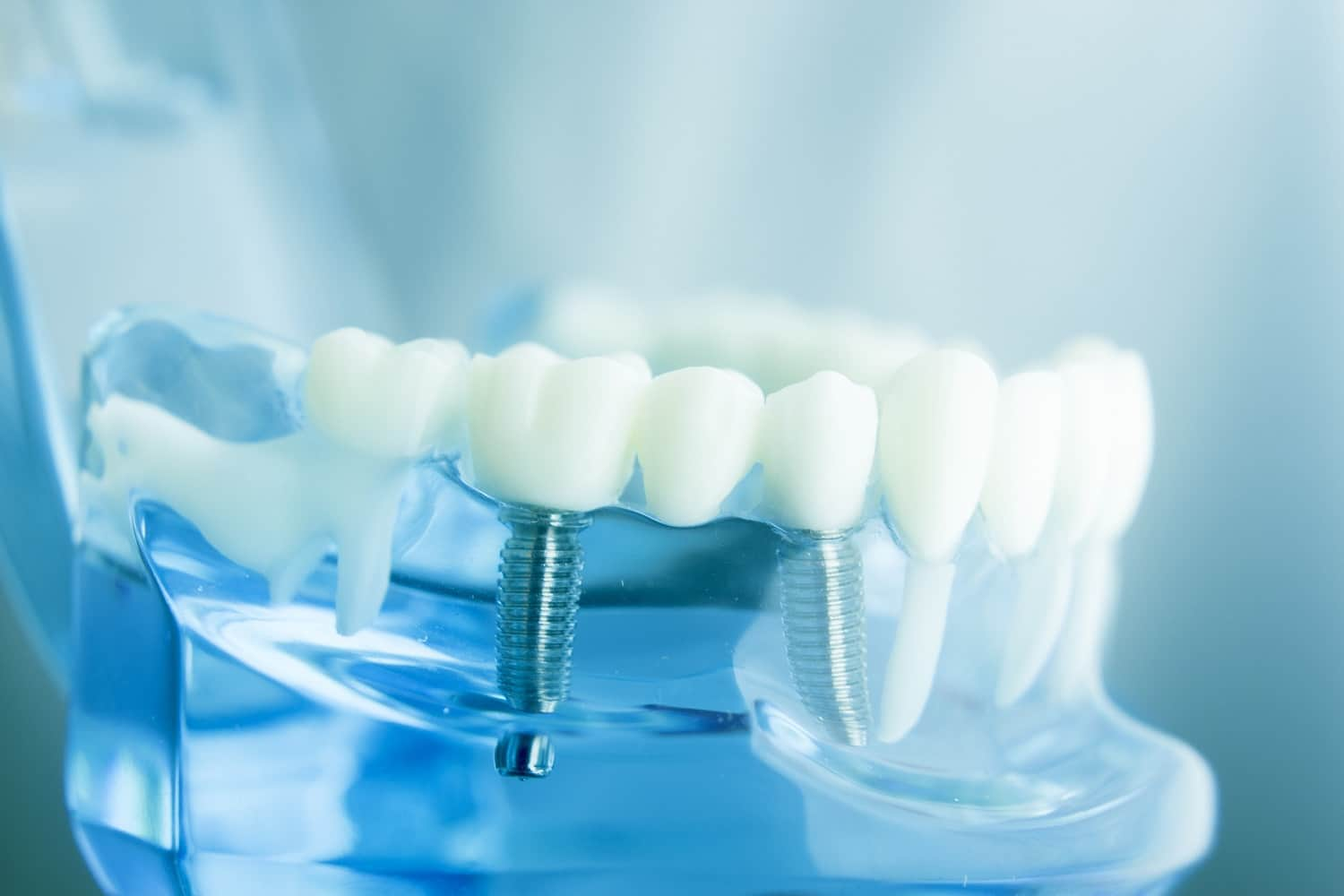 dental implants featured